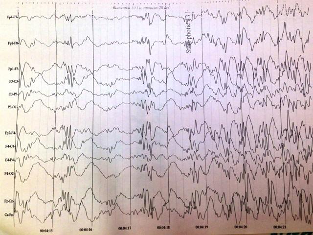 Электроэнцефалограмма (Ээг)