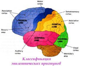 классификация эпилептических приступов