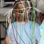 Эпилепсия впервые
