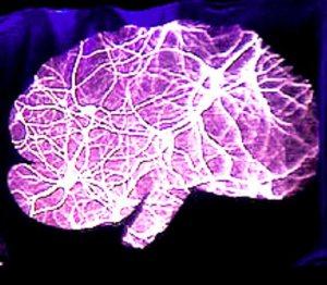 Головной мозг при эпилепсии