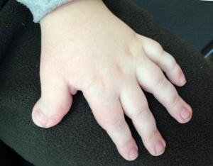 кисть при синдроме Рубинштейна - Тейби