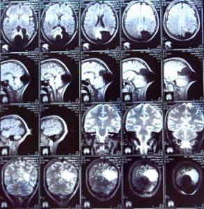 Эпилепсия прошла