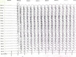 ЭЭГ Детская абсанс эпилепсия