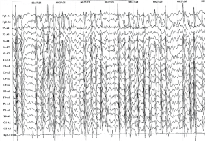 ЭЭГ электрического эпилептического статуса сна