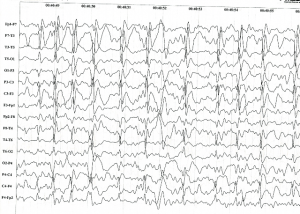 Electric Status Epilepticus in Sleep