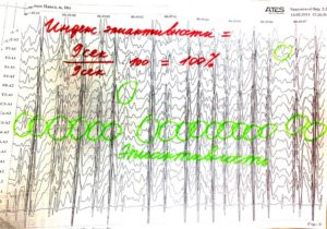 Индекс эпиактивности  на ЭЭГ