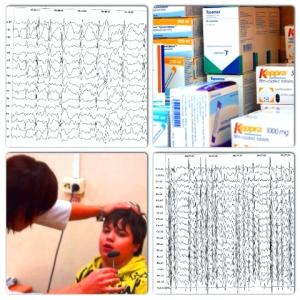 Когнитивная эпилептиформная дезинтеграция