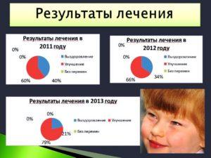 Результаты лечения пареза лицевого нерва