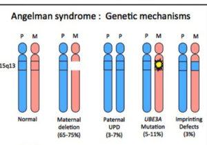 4 генетических варианта появления синдрома Ангельмана