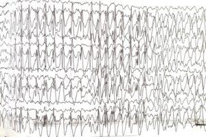 Эпиактивность при Синдроме Ангельмана