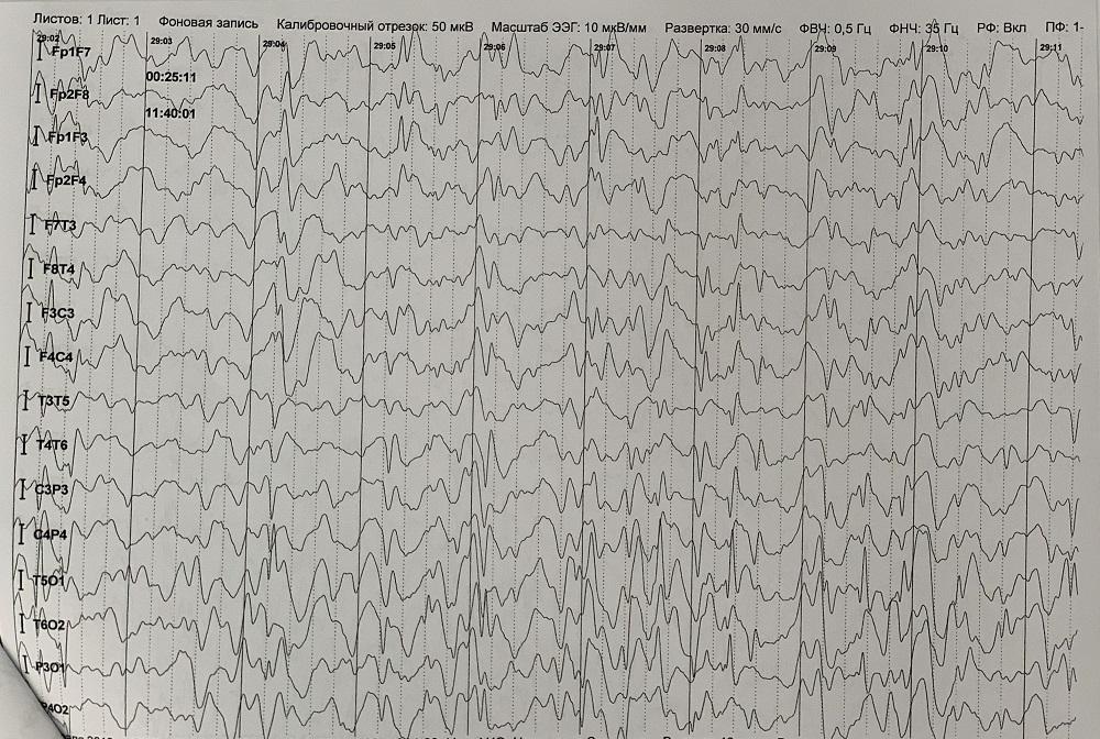 эпилептиформный паттерн ДЭПД на ЭЭГ