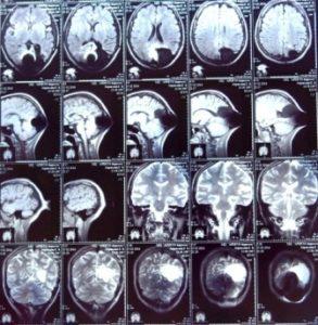 Опухоль головного мозга - причина эпилепсии