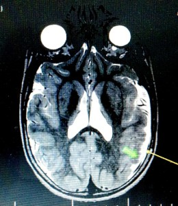 МРТ полимикрогирия