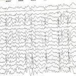 Роландическая эпилепсия