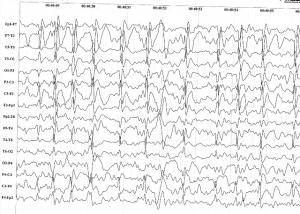 Electric Status Epilepticus in Sleep