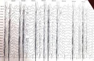 Эпиактивность при когнитивной эпилептиформной дезинтеграции