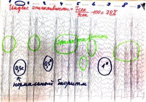 Когнитивная эпилептиформная дезинтеграция ЭЭГ
