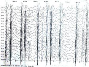 Эпилепсия во сне ЭЭГ