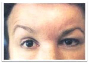 Клиника пареза лицевого нерва