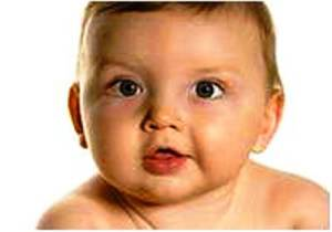 Парез лицевого нерва у новорожденных