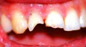 травма зуба после приступа