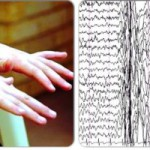 Ювенильная миоклоническая эпилепсия (ЮМЭ) Парамонова Е.Н.
