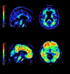 Позитронно-эмиссионная томография