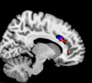 Морфологические изменения в мозге у зависимых от гаджетов