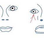 Врождённый птоз и синкинезии или эпилепсия? Синдром Маркуса Гунна как проявляется, чем лечить, какой прогноз